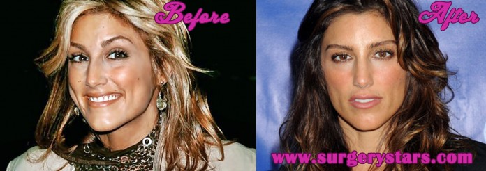 Jennifer Esposito Plastic Surgery