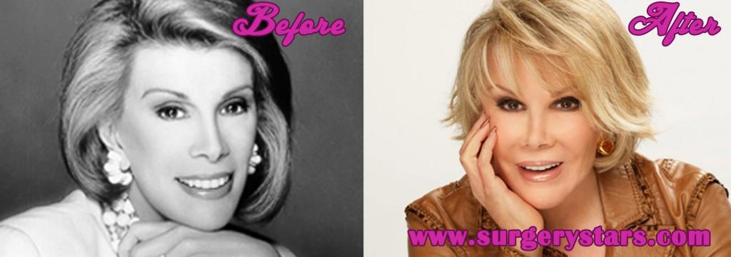 Joan Rivers Before Plastic Surgery