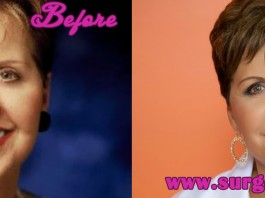 Joyce Meyer Plastic Surgery