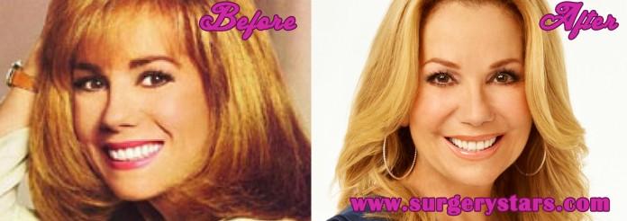 Kathie Lee Gifford Plastic Surgery