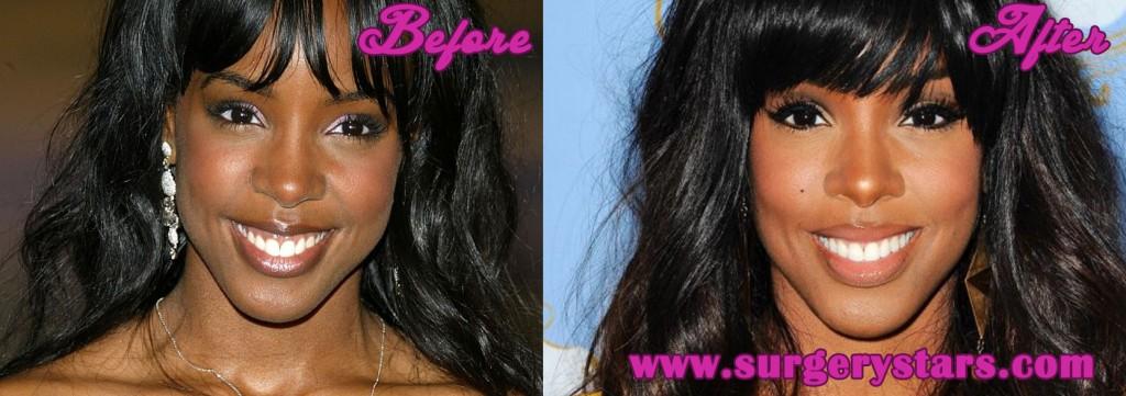 Kelly Rowland nose job