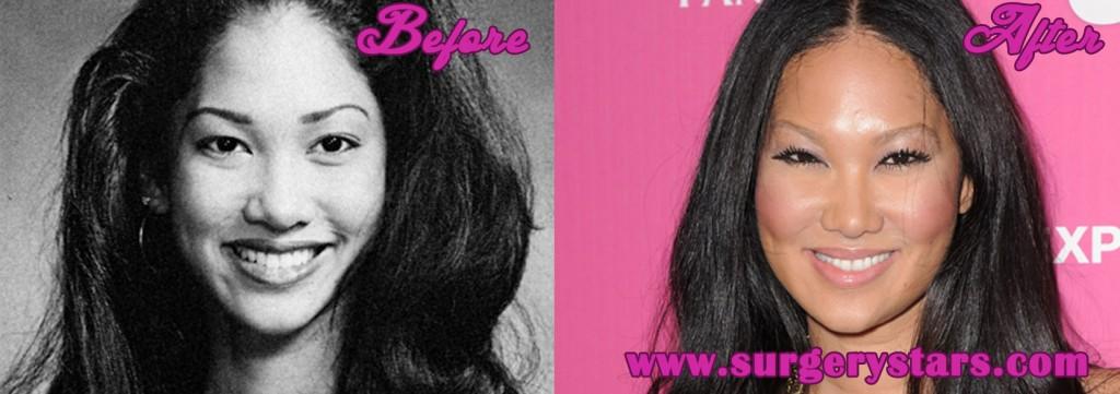 Kimora Lee Simmons Plastic Surgery