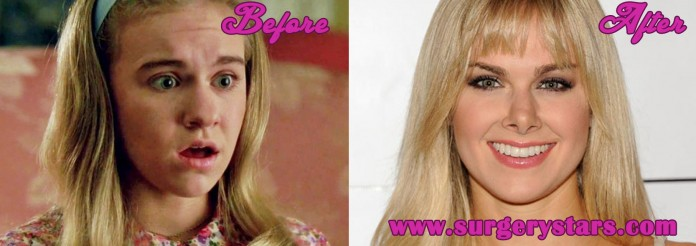 Laura Bell Bundy Nose Job