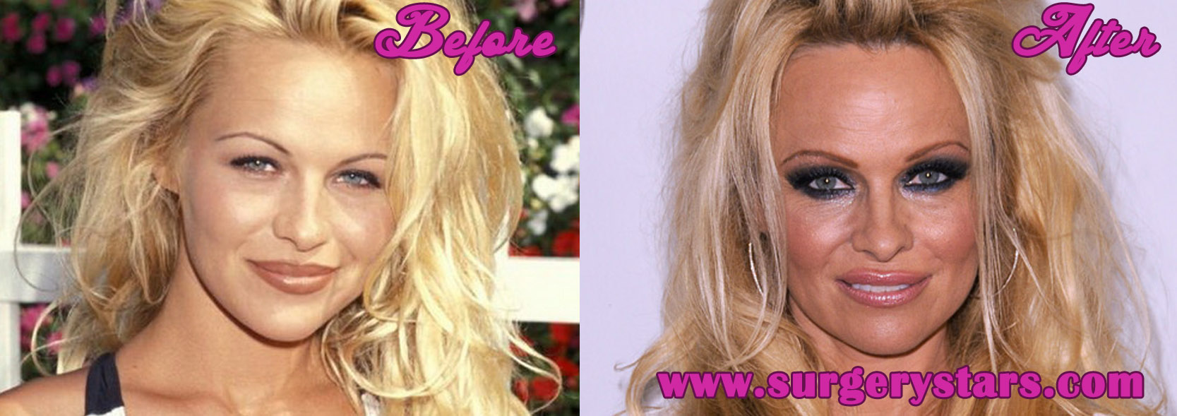 pamela anderson plastic surgery before after pic