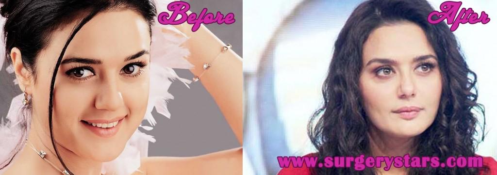 Preity Zinta Plastic Surgery