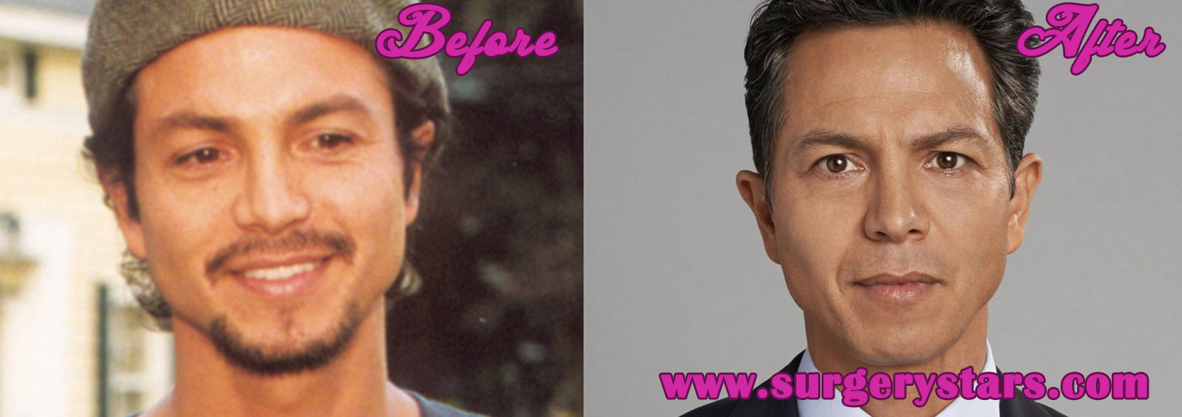 Benjamin Bratt Nose Job Before And After Pictures