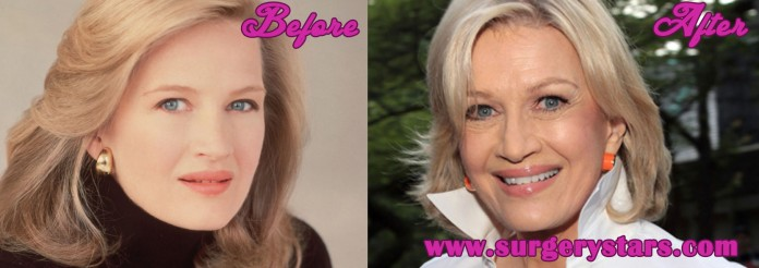 Diane Sawyer Plastic Surgery | Before & After Photos