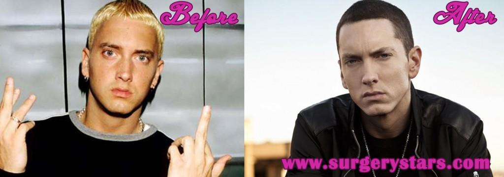 Eminem Plastic Surgery