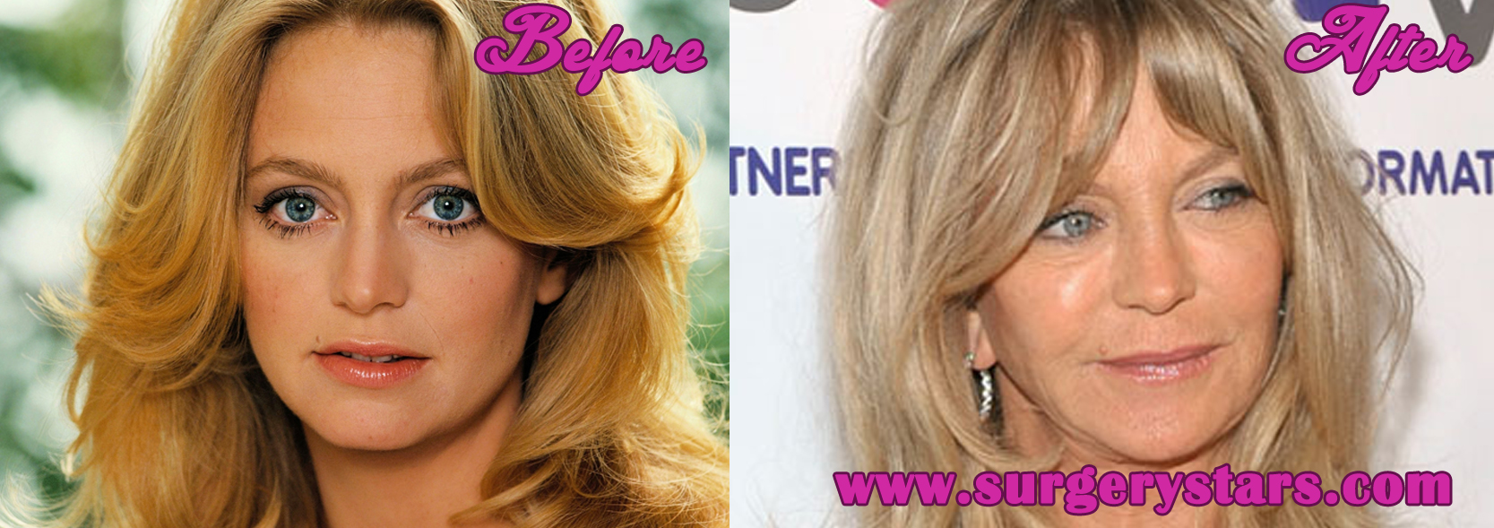 Goldie Hawn Plastic Surgery – Before and After Pictures