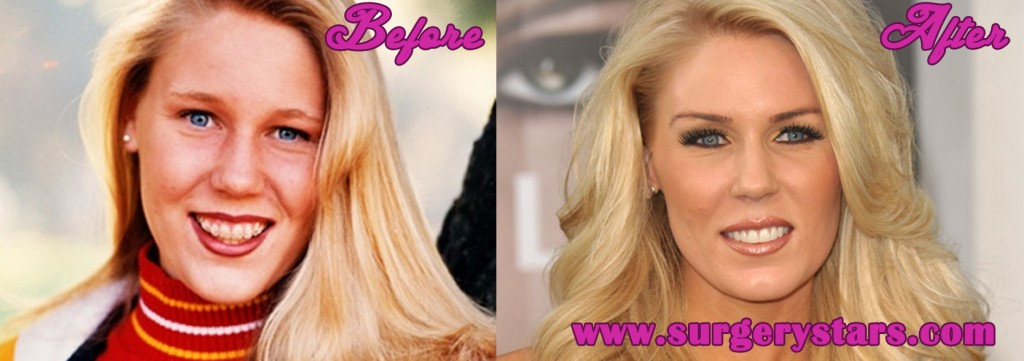 Gretchen Rossi Plastic Surgery
