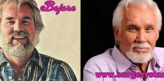 Kenny Rogers Plastic Surgery