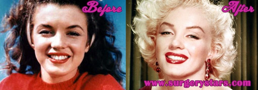 Marilyn Monroe Plastic Surgery