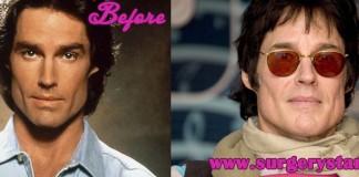 Ronn Moss Plastic Surgery