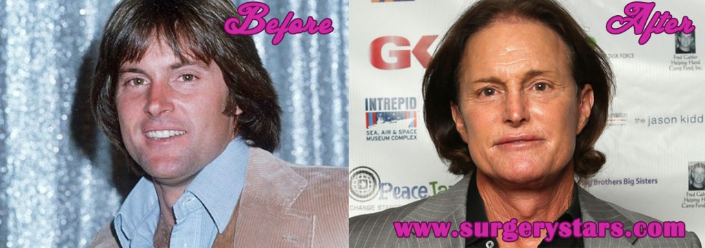 Worst Plastic Surgery Bruce Jenner