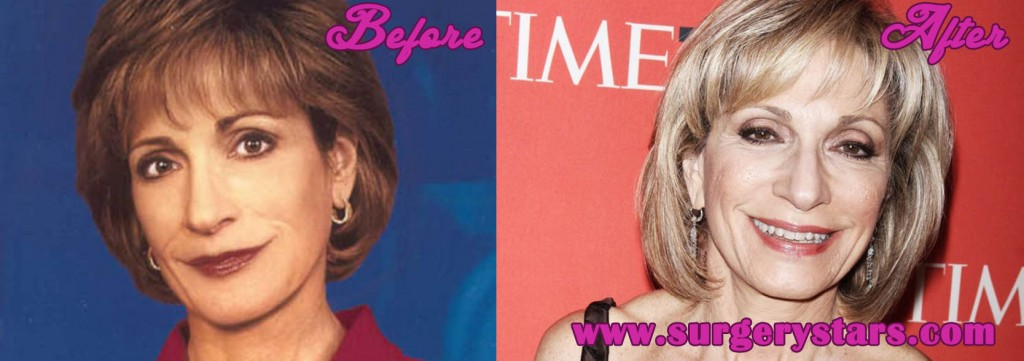 Andrea Mitchell Age