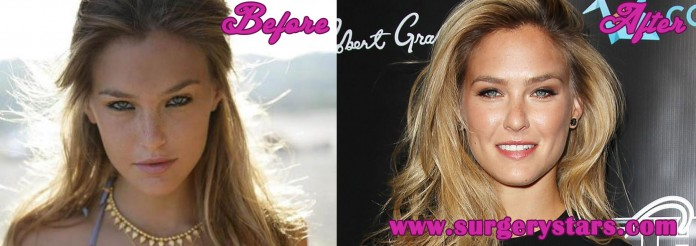 Bar Refaeli Plastic Surgery
