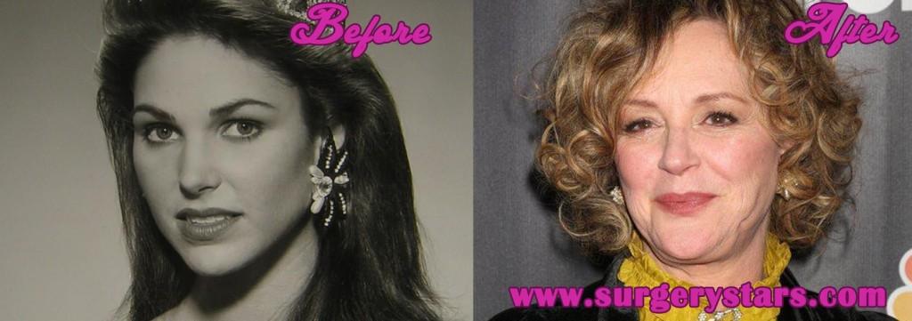 Bonnie Bedellia Facelift