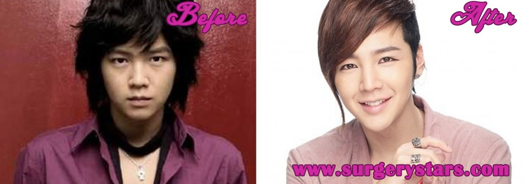 Jang Geun Suk Plastic Surgery
