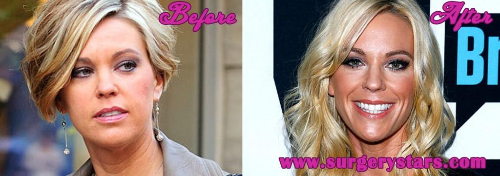 Kate Gosselin Plastic Surgery