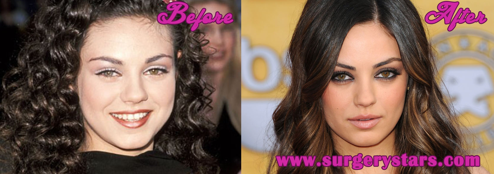 Mila Kunis Nose Job Before and After Pictures