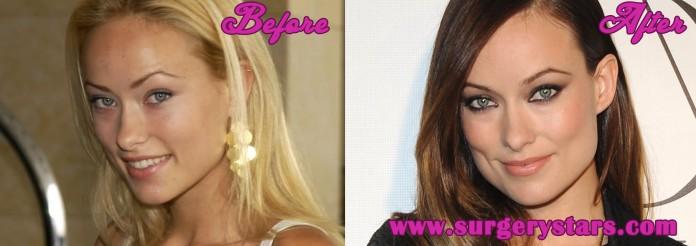 Olivia Wilde Plastic Surgery