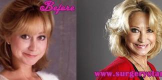 Felicity Kendal Plastic Surgery