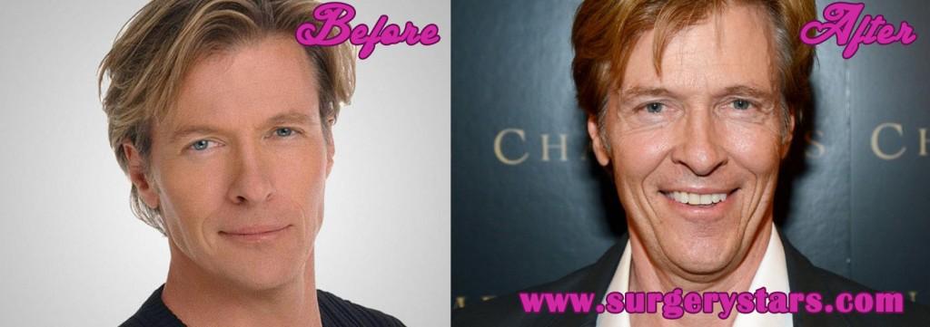 Jack Wagner Plastic Surgery