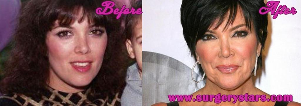 Kris Kardashian Plastic Surgery