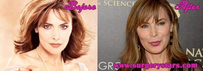 Lauren Koslow Plastic Surgery