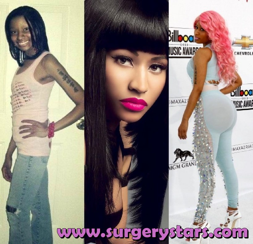 Nicki Minaj Butt Implants Before & After Pictures