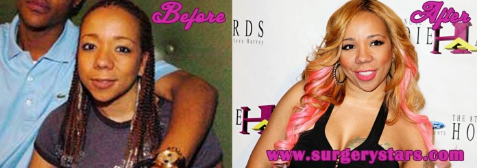 Tiny Harris Plastic Surgery