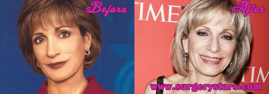 Andrea Mitchell Facelift