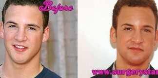 ben savage nose job - 324×160