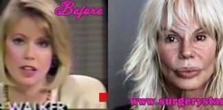 Bree Walker Plastic Surgery