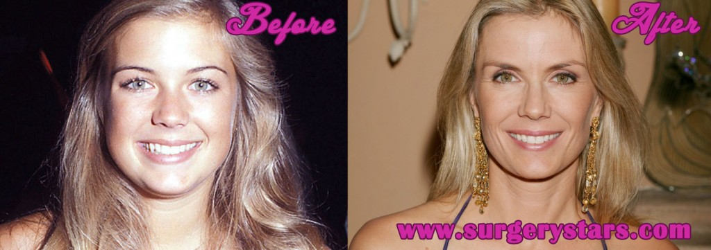 Katherine Kelly Lang Plastic Surgery
