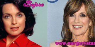 Linda Gray Plastic Surgery