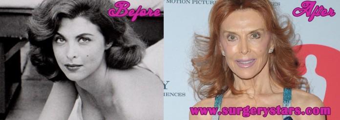 Tina Louise Plastic Surgery