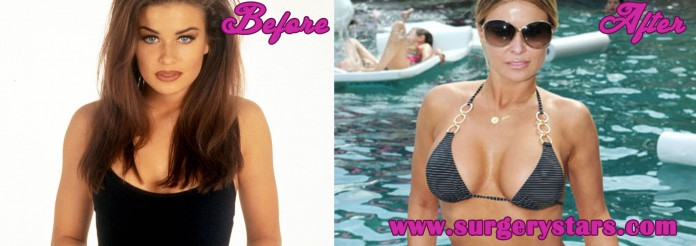 20 Celebrities with Breast Augmentation before and after
