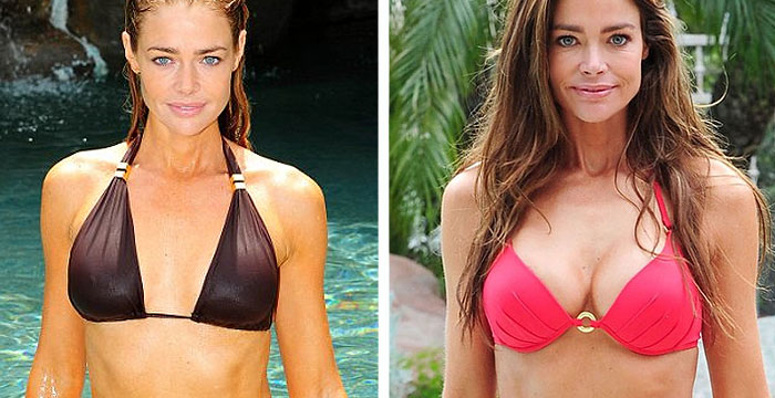 Denise Richards before and after Breast Augmentation