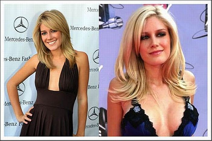 Heidi Montag before and after Breast Augmentation