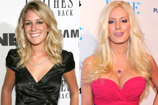 Heidi Montag breast implants before and after
