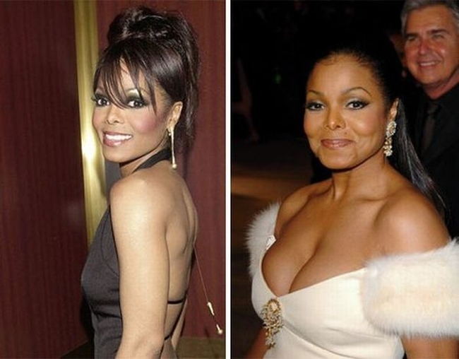 Janet Jackson before and after Breast Augmentation