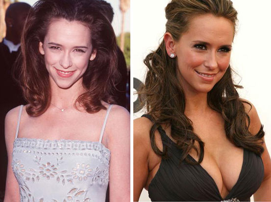 Jennifer Hewitt before and after Breast Augmentation
