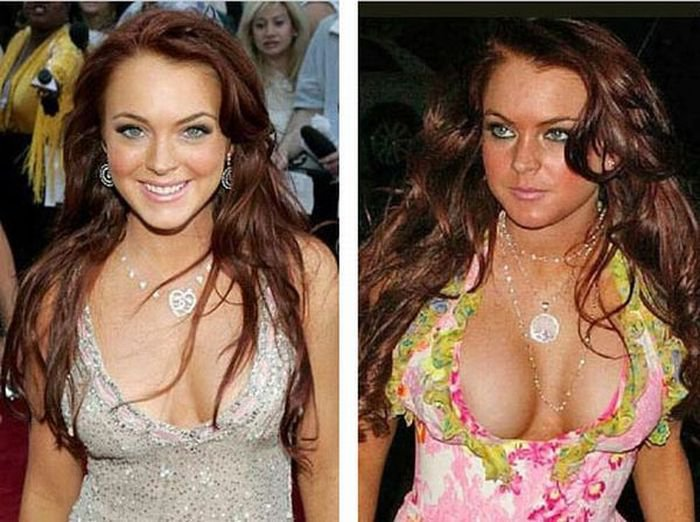 Lindsay Lohan before and after Breast Augmentation