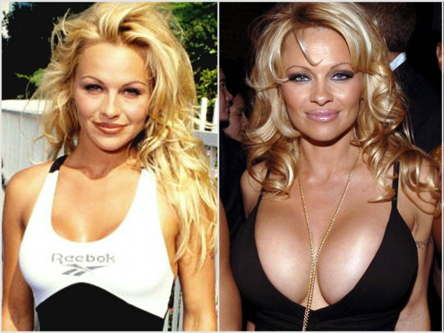 Pamela Anderson before and after Breast Augmentation