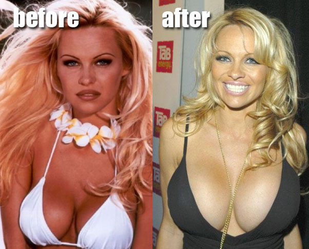 Pamela Anderson breast implants before and after