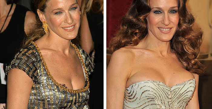 Sarah Jessica Parker before and after Breast Augmentation