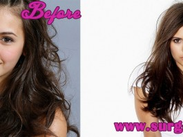 Nina Dobrev before and after plastic surgery