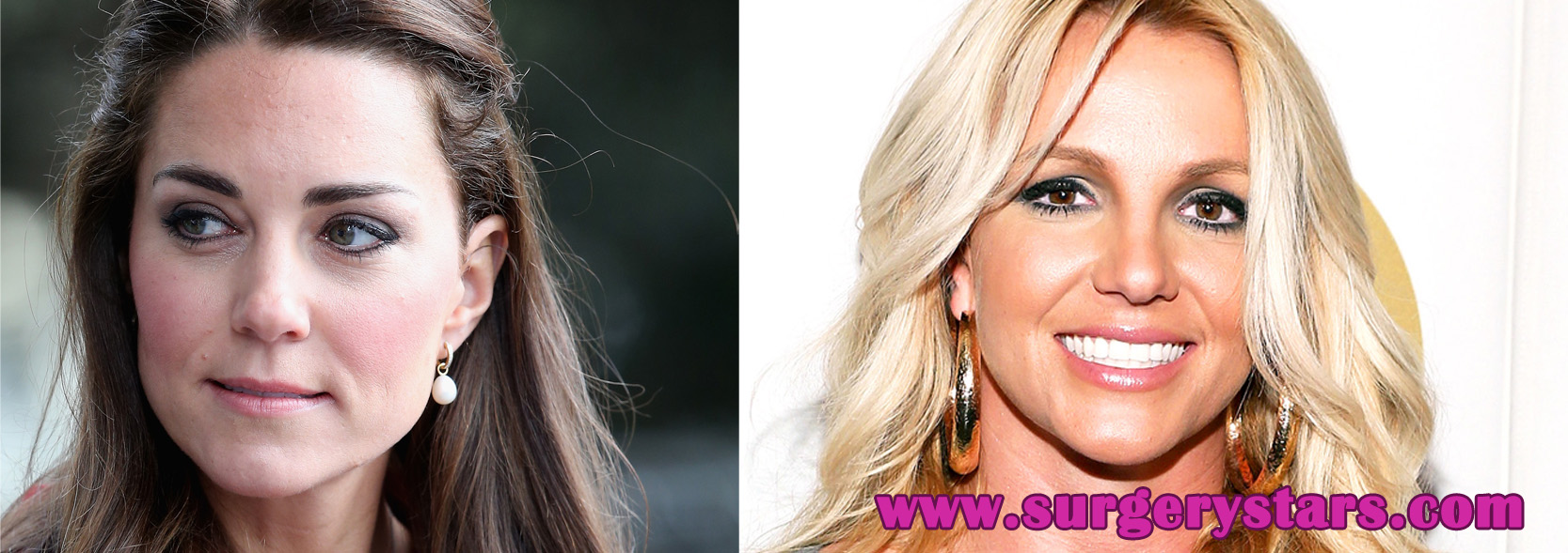 celebrity before and after plastic surgery (10 celebs)