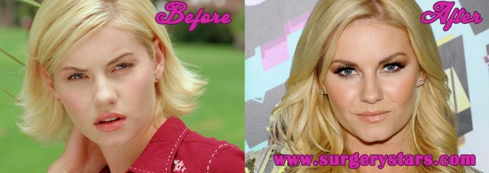 elisha cuthbert plastic surgery